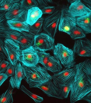 From the heart: Heart photo competition: Heart muscle cells