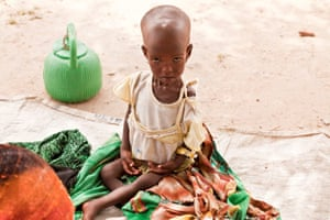 Action Against Hunger: Tackling life-threatening child malnutrition in Chad