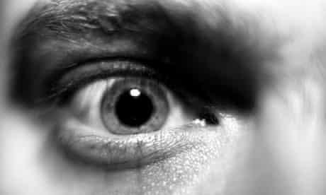 A human eye