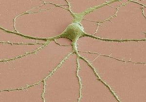 Portraits of the mind: Photomicrograph of a neuron's cell body
