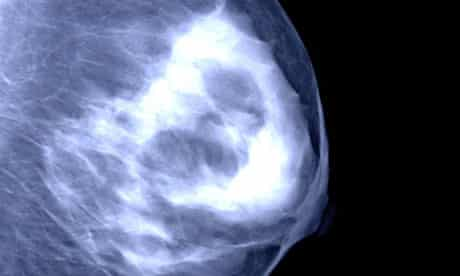 A mammogram of a breast