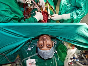 Eyewitness: Awake Cardiac Surgery, Bangalore Fortis Hospital, Bangalore, India