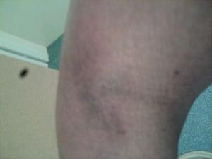 Yarl's Wood Injuries: Yarl's Wood Injuries