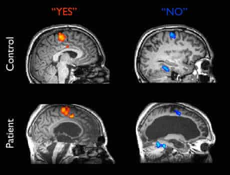 Images from an fMRI  machine
