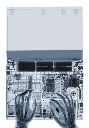 X-ray: A laptop