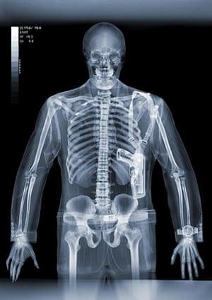 X-ray: A human wearing a gun strap