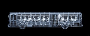 X-ray: A bus