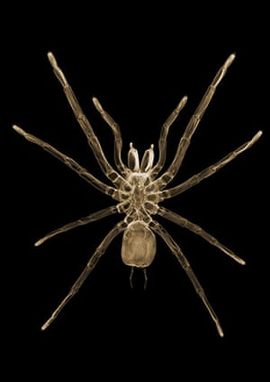X-ray: A spider