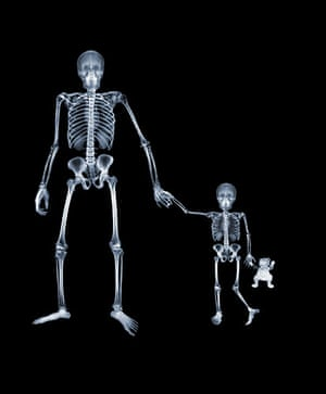 X-ray: A mother and child