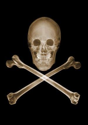 X-ray: A skull and cross bones