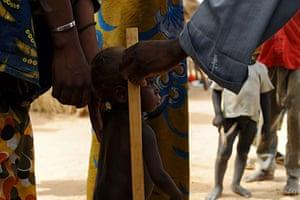 Niger Children: Marcia being measured for signs of malnutrition by volunteer Zani Malaharou