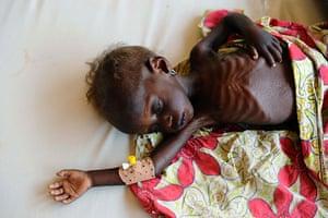 Niger Children: Rahila sleeps in a stablisisation clinic in Aiguie, Niger