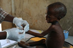 Niger Children: Appoua, 36 months, being examined by nurse Ali at the stablisation clinic