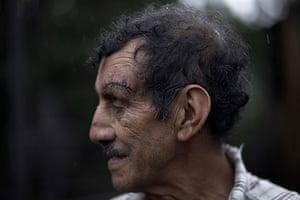 Guatemala volcano: A man shows injuries the Pacaya Volcano in Guatemala