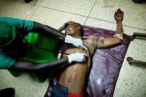 24 hours in pictures: Kampala, Uganda: A doctor treats a victim at Mulago hospital