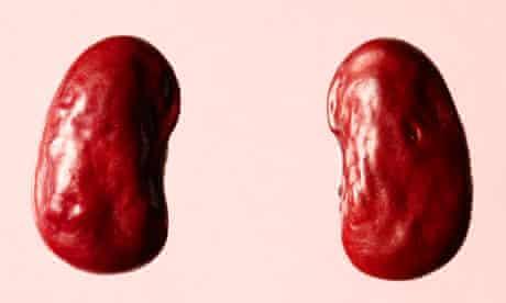 Doctor, doctor: Kidney disease