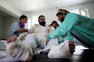 Afghanistan: 6 September 2009: An Afghan victim
