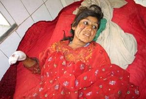 Afghanistan: 30 June 2007: An Afghan girl lies on a hospital bed