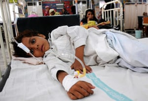 Pakistan Flood Disaster: A Pakistani flood affected child suffering from a waterborne disease