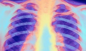 tuberculosis x-ray