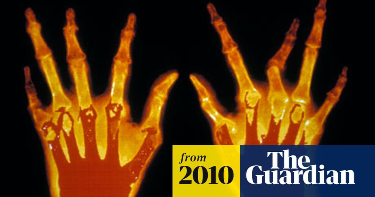 Failure To Act On Early Signs Of Rheumatoid Arthritis Could Prove Fatal Science The Guardian