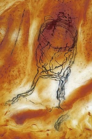 Bike blog: Sensory nerve ending of hair follicle