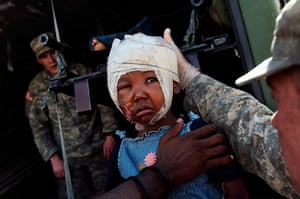 Haiti one year on: January 21:Narlie, 4, who was seriously injured in the Haitian earthquake