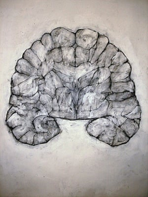 Brainstorm: Investigating the brain through art and science