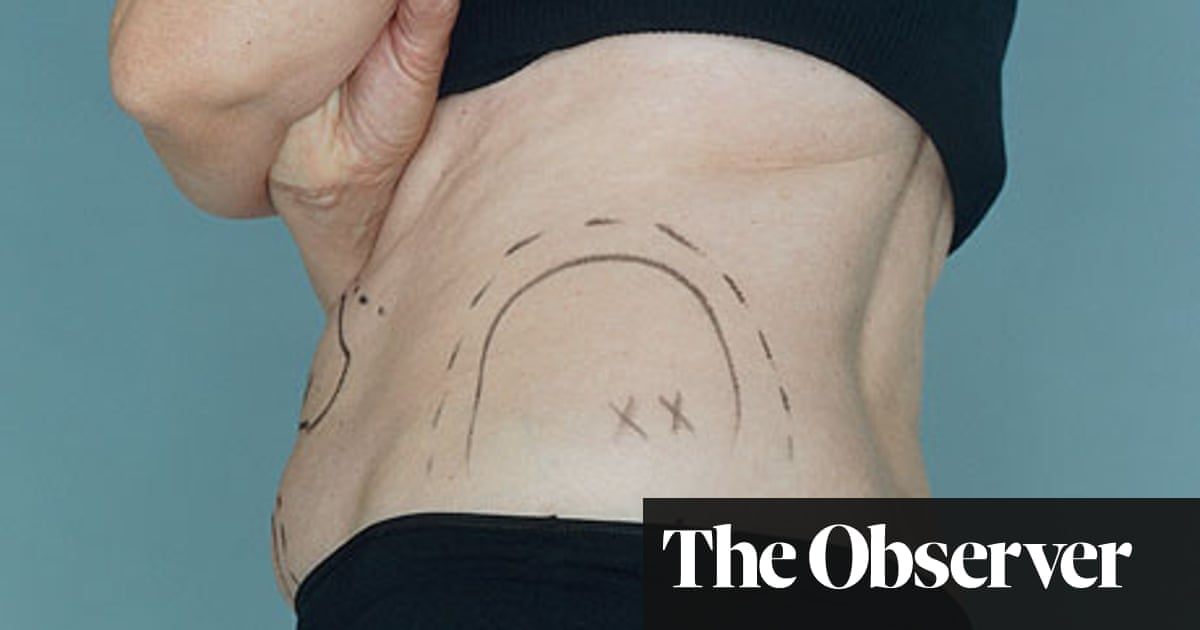 Plastic surgery companies under fire for tempting people
