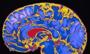 MRI (magnetic resonance imaging) scan of human brain