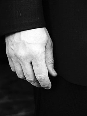 In pictures: Loss: Man's hand