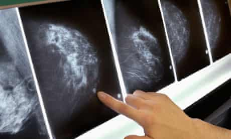 NHS breast screening is leading to needless treatment, say scientists