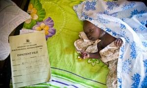 Baby with malaria, eastern Uganda
