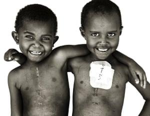 Giles Duley: Sudan