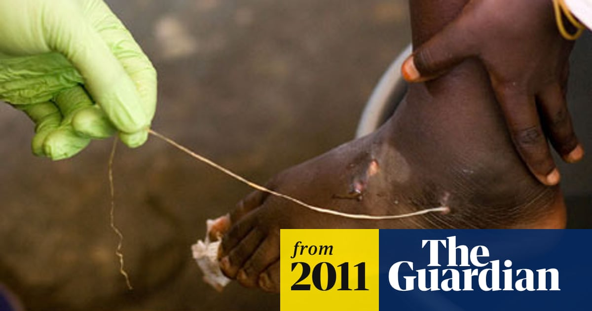 Jimmy Carter spearheads final drive to eradicate guinea worm