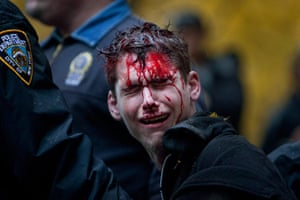 Occupy Day of Action: Protestor with blood on his face is escorted by police in Zuccotti park