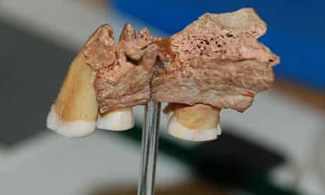 Jawbone with three teeth from the earliest known modern human in Europe