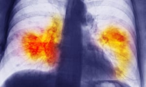 Lung cancer tumours