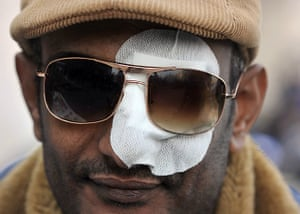 Tahrir Square: An injured Egyptian attends the protest in Tahrir Square