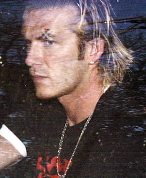 Fergie's 25 years: David Beckham leaves his home with a sticking plaster over his left eye