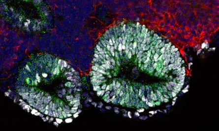 Mouse pituitary tissue grown from embryonic stem cells