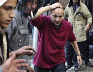 Tahrir Square clashes: A protester's head bleeds from a stone thrown at Tahrir Square
