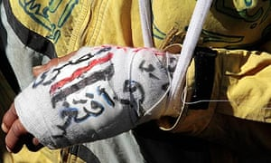 A Tahrir Square protester's bandaged hand