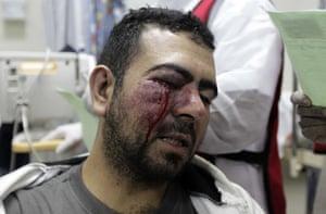 bahrain: A wounded Shiite Bahraini demonstrator