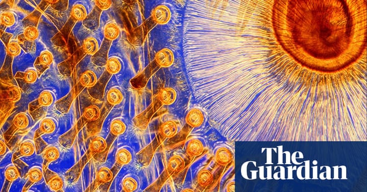Wellcome Image Awards 2011: Life as you've never seen it