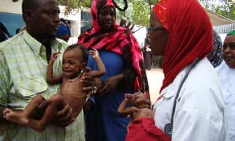 A doctor helps malnourished babies awaiting treatment at the Hawa Abdi hospital in Afgoye, Somalia