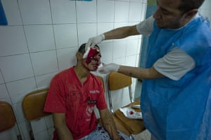 Venezuela Caracas : A man recieves treatment for a severe knife wound in Petare Caracas