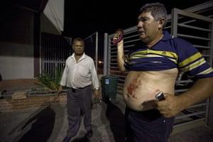 Venezuela Caracas : Caracas, Venezuela. A victim of a stabbing arrives clinic
