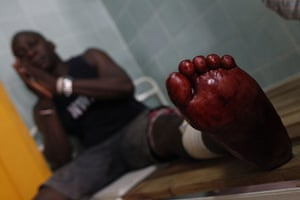 Ivory Coast violence: A man shot in the leg when security forces loyal to Gbagbo opened fire
