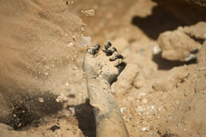 Ajdabiya, Libya : The charred hand of a pro-Gaddafi fighter, Ajdabiya